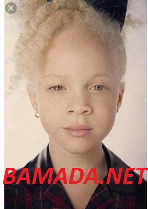 assassinat-ramata-diarra-petite-albinos-tue-gombele-mort-fana-election-presidentielle-africaine-mali-bamako-fana.jpg