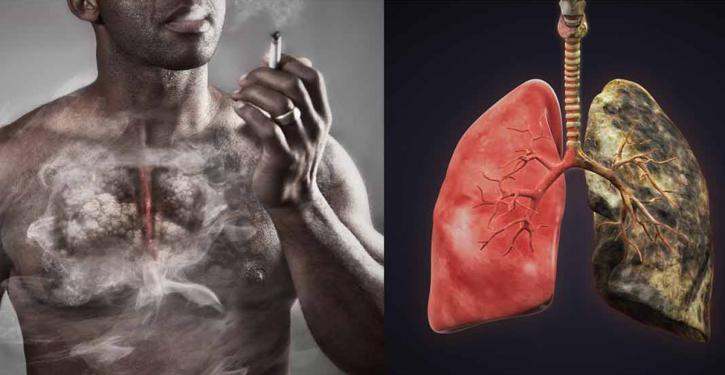 Voici-la-difference-entre-des-poumons-sains-et-ceux-dun-fumeur_1-725x375